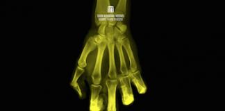 The Bones That Come Late, Teki Dervishi, Fest(in) pe Bulevard, Teatru Nottara, recenzie teatru, cronica teatru, recenzie The Bones That Come Late, cronica The Bones That Come Late